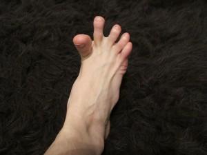 Причиной ночных судорог мышц ног являются неврологические и сосудистые нарушения