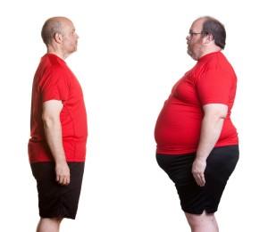 Ожирение является и причиной, и следствием апноэ сна