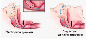 синдром обструктивного апноэ сна