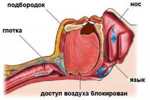 При храпе мышцы глотки теряют тонус