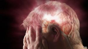 Синдром обструктивного апноэ сна сопровождается повышенным риском инсульта