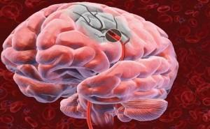 Инсульт это острое нарушение мозгового кровообращения, приводящее к отмиранию клеток мозга.