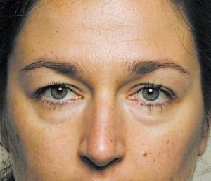 У здоровых людей, как правило, отеки вокруг глаз появляются утром и проходят через несколько часов.