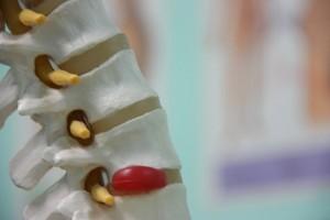 Грыжа межпозвоночных дисков является одной из причинь болей в спине.