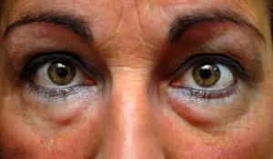 Нередко отеки под глазами – одно из первых проявлений болезней почек.