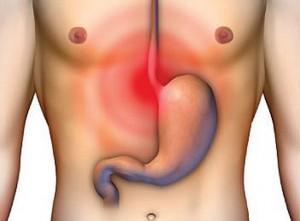 В большинстве случаев гастрит представляет собой поверхностное воспаление слизистой, которое требует не столько лечения, сколько правильного питания.