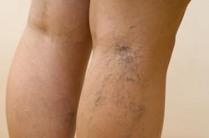 Отег ног является одним из первых проявлений варикоза.