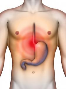 Апноэ сна может вызывать приступы рефлюкс-эзофагита, которые приводят к боли за грудиной