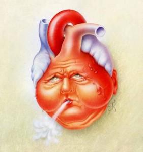 Синдром апноэ ускоряет развитие ишемической болезни сердца