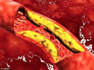 Причина ишемической болезни сердца - атеросклероз