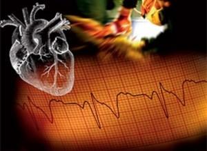 До трети кардиологических больных страдают СОАС